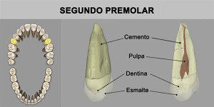 5_SegPremolar_superior