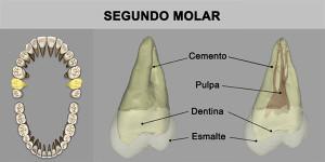 7_SegMolar_superior